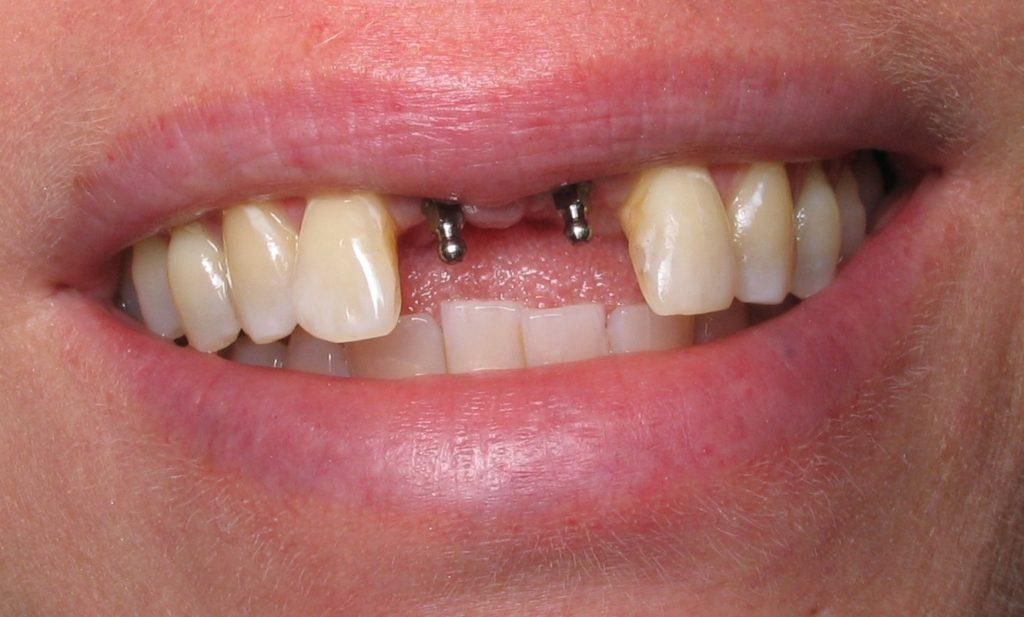 Имплантация зубов 1
